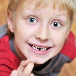 La perte des dents de lait sant enfant dents - A quel age couper les ongles de bebe ...